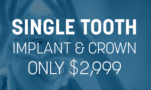 special offers for single tooth implant