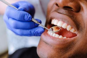man with teeth being examined by dentist, teeth cleaning atascocita tx