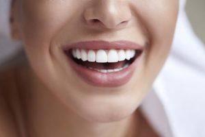 close up of bright perfect smile after dental bonding atascocita tx